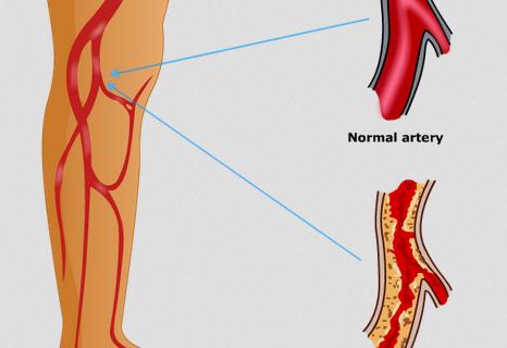 جراحة الاوعية الدموية
